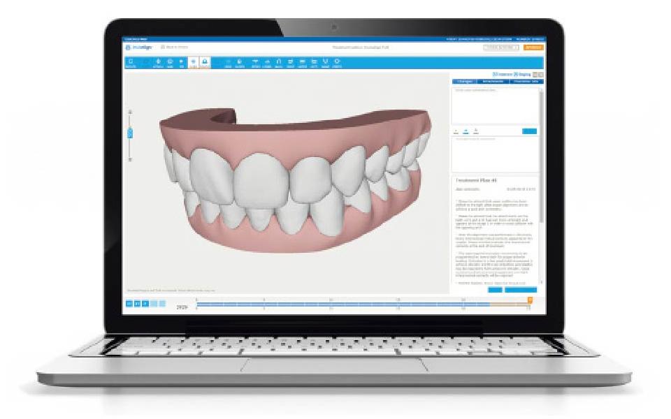 3Dシミュレーション・治療計画