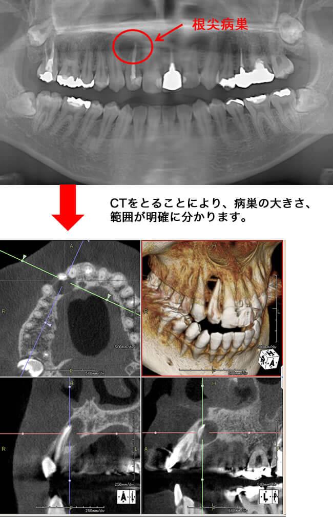 CTを活用した治療